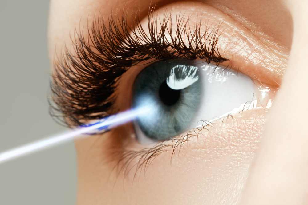 LASIK in Naples, FL